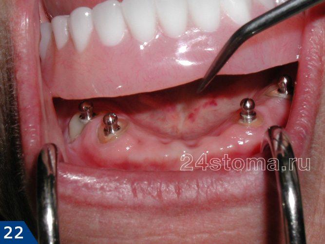 Процесс надевания полного съемного протеза с фиксацией на 4х имплантах