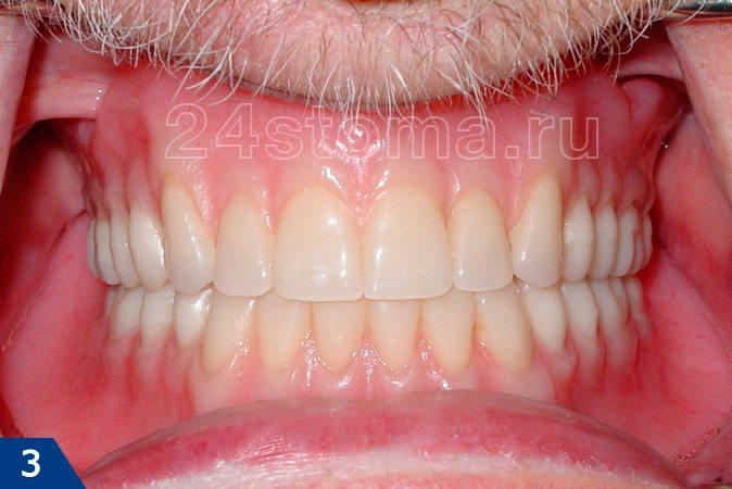 Вид полных съемных зубных протезов на вернюю и нижнюю челюсти в полости рта