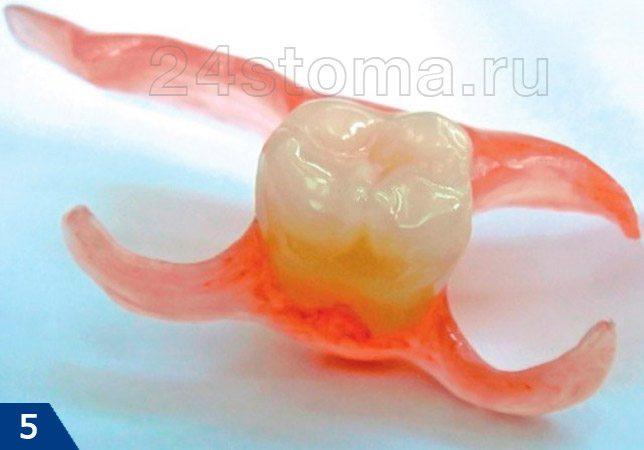 Акриловый протез на один зуб (протез-бабочка)