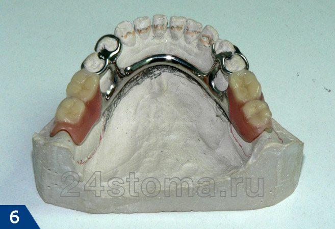 Бюгельный протез на гипсовой модели нижней челюсти (вид сверху) на кламмерах