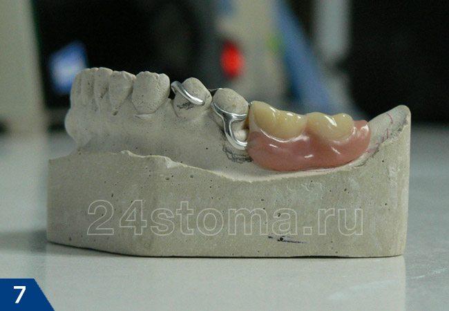 Бюгельный протез на гипсовой модели нижней челюсти (вид сбоку) на кламмерах