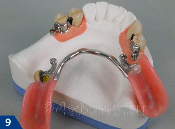 Бюгельный протез нижней челюсти на микрозамках